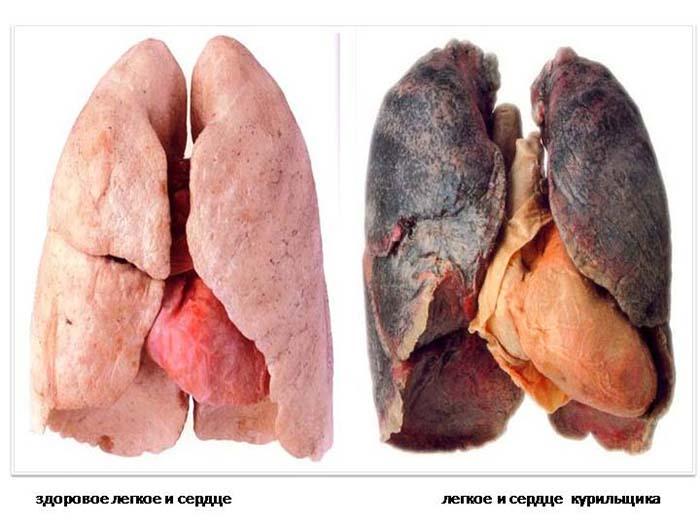 Очищенные легкие после курения в домашних условиях